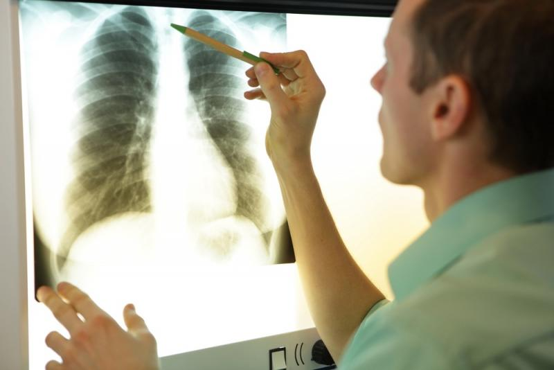 NTT DATA collaborates with Imbio on lung analytics